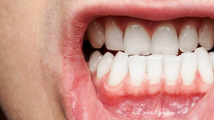 Infecţia gingivală şi asocierea cu Boala Alzheimer